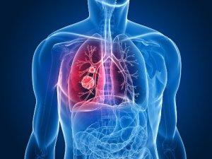 Cancer-de-pulmon-500x375